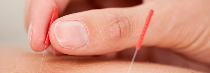Chiropractic Fredericksburg VA acupuncture